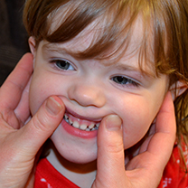 two thumbs pushing upper lip upwards to show top teeth and gums